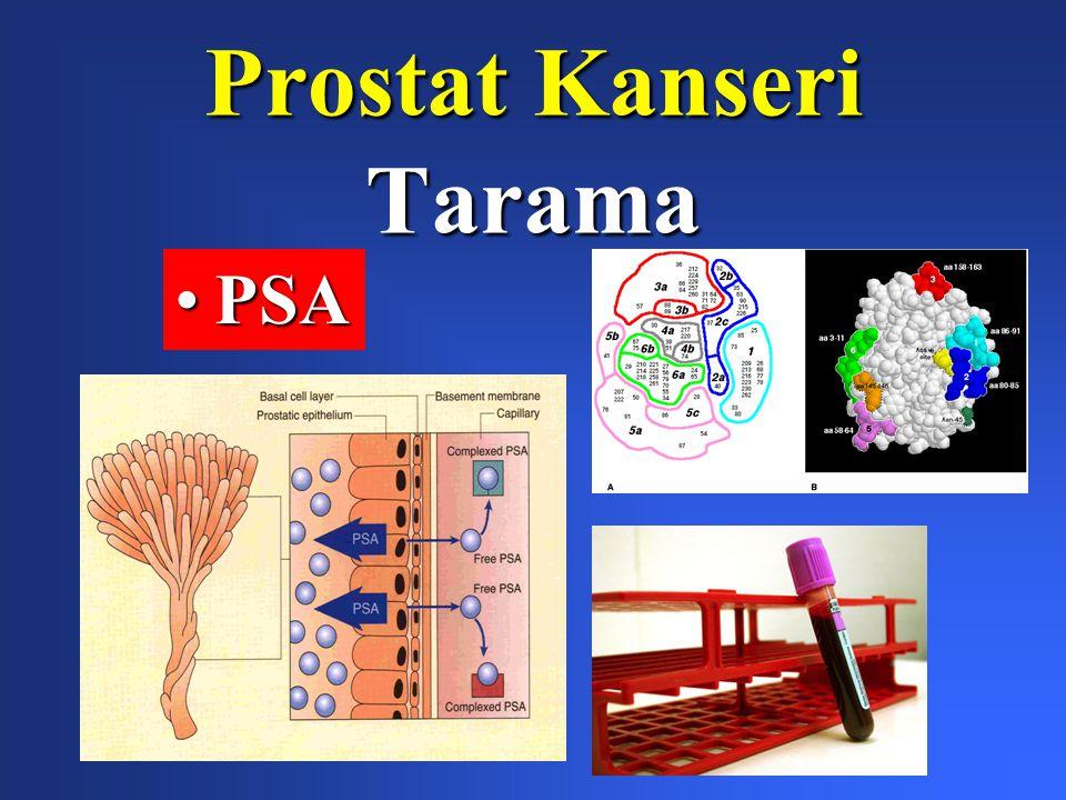 Prostat Kanseri Tarama PSAPSA