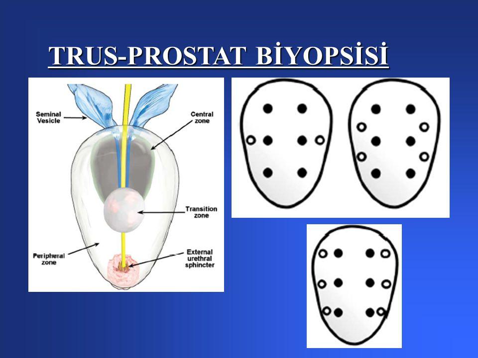 TRUS-PROSTAT BİYOPSİSİ