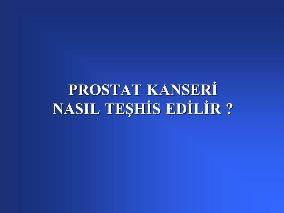 PROSTAT KANSERİ NASIL TEŞHİS EDİLİR