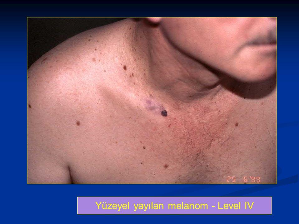 Yüzeyel yayılan melanom - Level IV