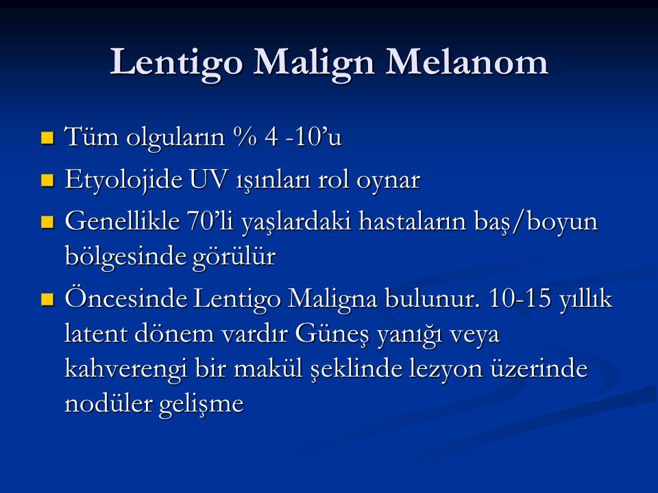 Lentigo Malign Melanom Tüm olguların % 4 -10'u Tüm olguların % 4 -10'u Etyolojide UV ışınları rol oynar Etyolojide UV ışınları rol oynar Genellikle 70