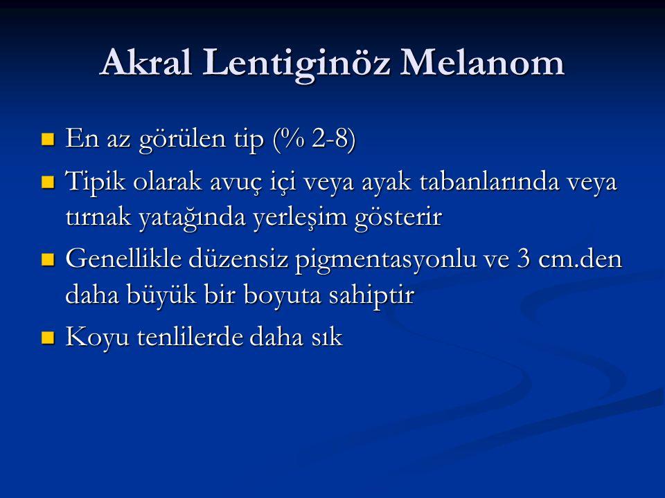 Akral Lentiginöz Melanom En az görülen tip (% 2-8) En az görülen tip (% 2-8) Tipik olarak avuç içi veya ayak tabanlarında veya tırnak yatağında yerleş
