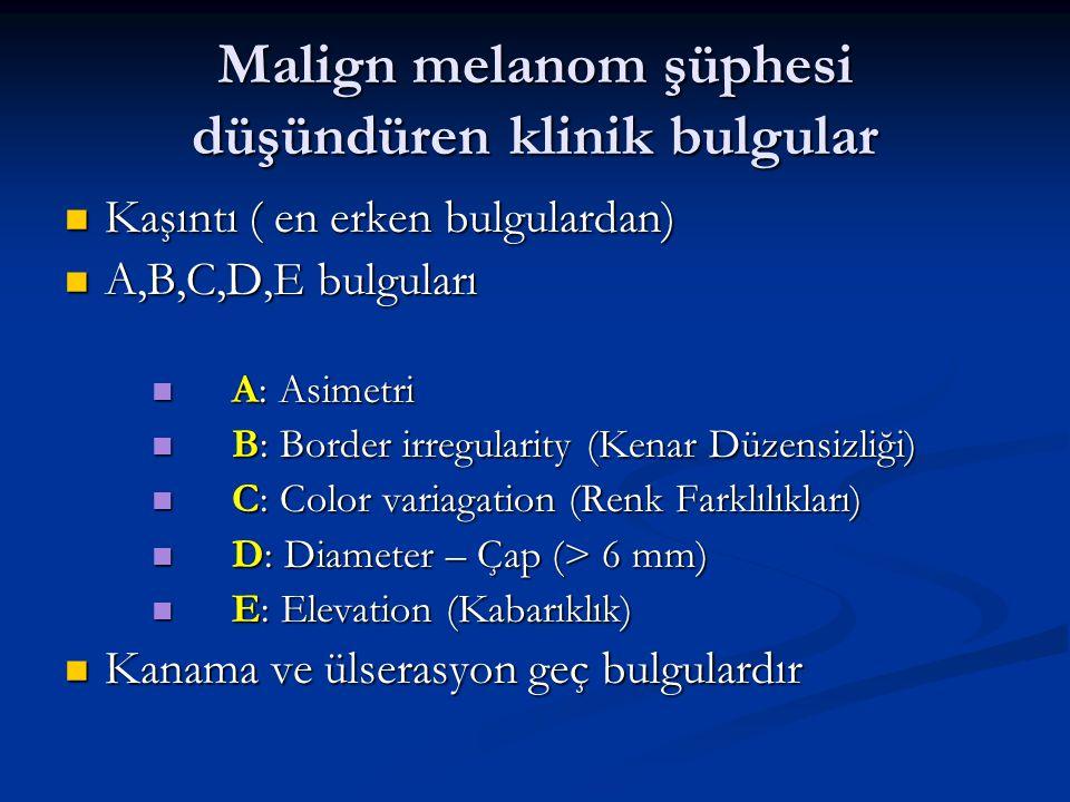 Malign melanom şüphesi düşündüren klinik bulgular Kaşıntı ( en erken bulgulardan) Kaşıntı ( en erken bulgulardan) A,B,C,D,E bulguları A,B,C,D,E bulgul