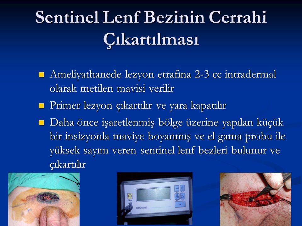 Sentinel Lenf Bezinin Cerrahi Çıkartılması Ameliyathanede lezyon etrafına 2-3 cc intradermal olarak metilen mavisi verilir Ameliyathanede lezyon etraf
