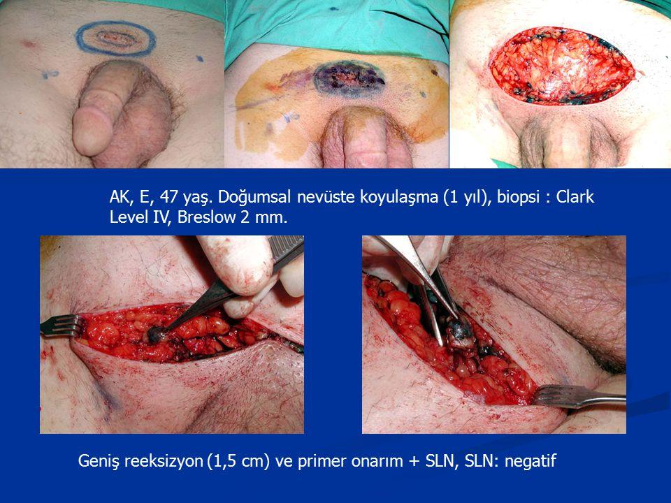 AK, E, 47 yaş. Doğumsal nevüste koyulaşma (1 yıl), biopsi : Clark Level IV, Breslow 2 mm. Geniş reeksizyon (1,5 cm) ve primer onarım + SLN, SLN: negat