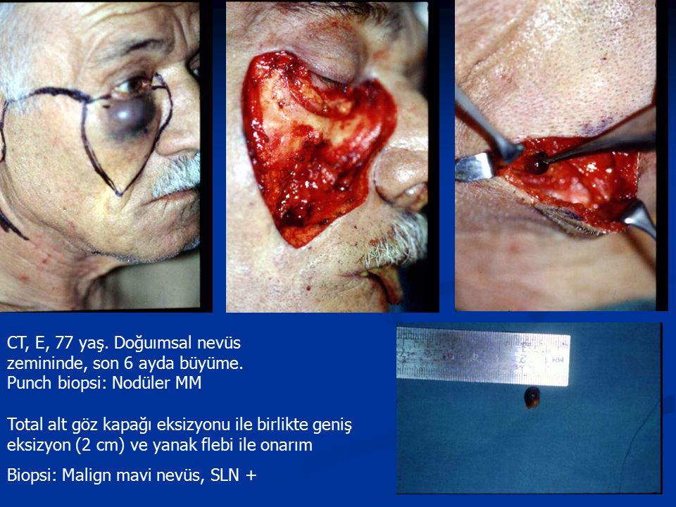 CT, E, 77 yaş. Doğuımsal nevüs zemininde, son 6 ayda büyüme. Punch biopsi: Nodüler MM Total alt göz kapağı eksizyonu ile birlikte geniş eksizyon (2 cm