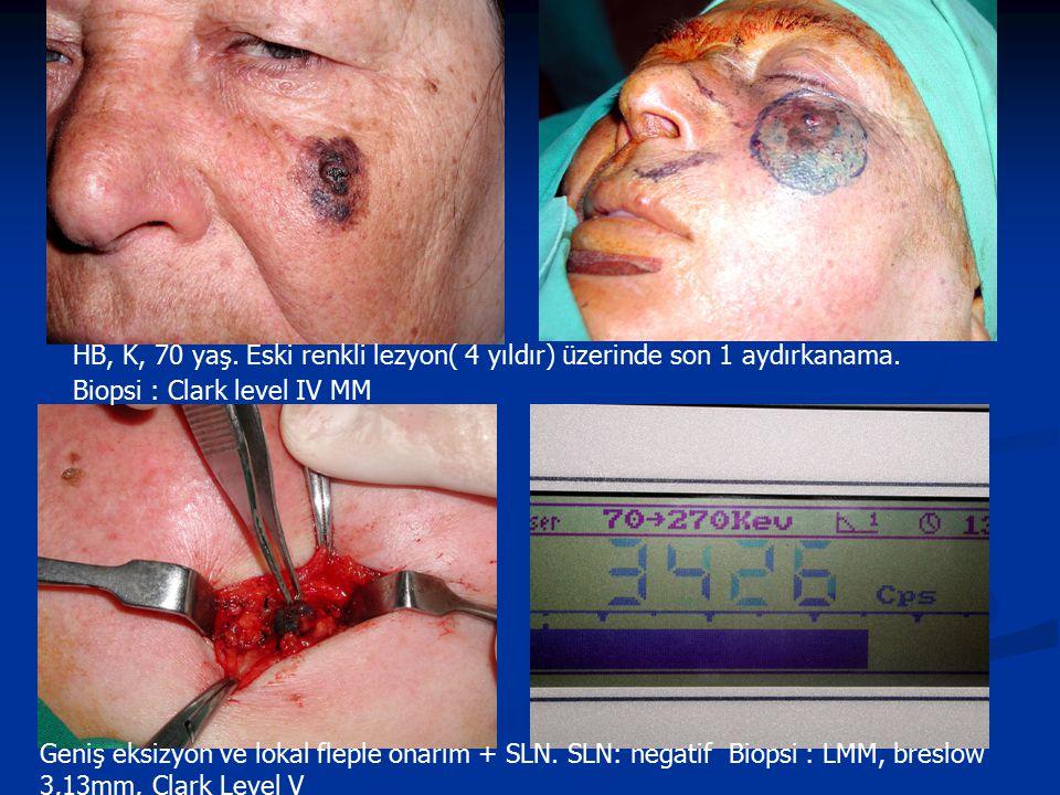 HB, K, 70 yaş. Eski renkli lezyon( 4 yıldır) üzerinde son 1 aydırkanama. Biopsi : Clark level IV MM Geniş eksizyon ve lokal fleple onarım + SLN. SLN: