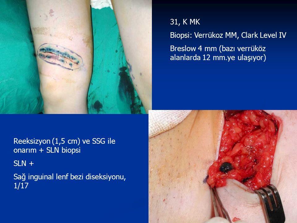 31, K MK Biopsi: Verrükoz MM, Clark Level IV Breslow 4 mm (bazı verrüköz alanlarda 12 mm.ye ulaşıyor) Reeksizyon (1,5 cm) ve SSG ile onarım + SLN biop