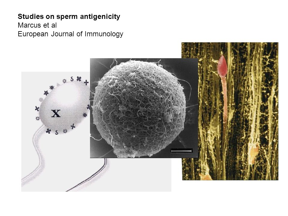 Studies on sperm antigenicity Marcus et al European Journal of Immunology