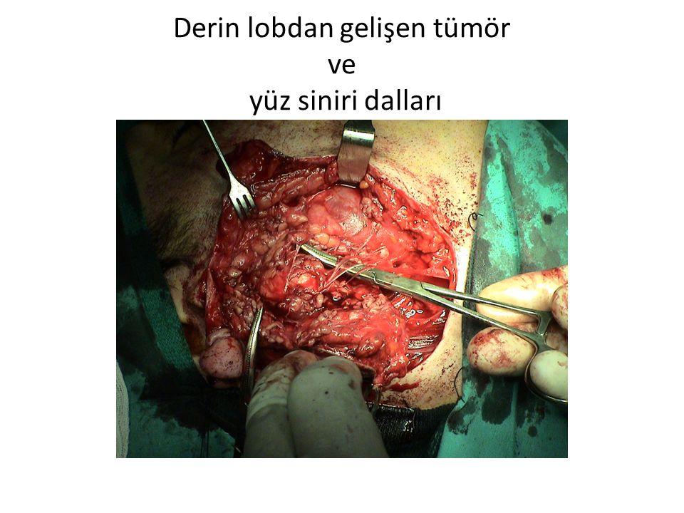 Derin lobdan gelişen tümör ve yüz siniri dalları