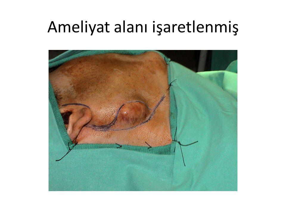 Ameliyat alanı işaretlenmiş