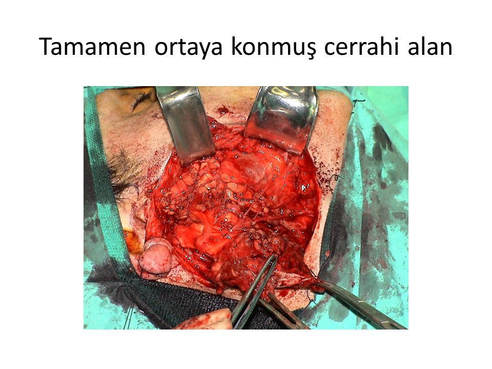 Tamamen ortaya konmuş cerrahi alan