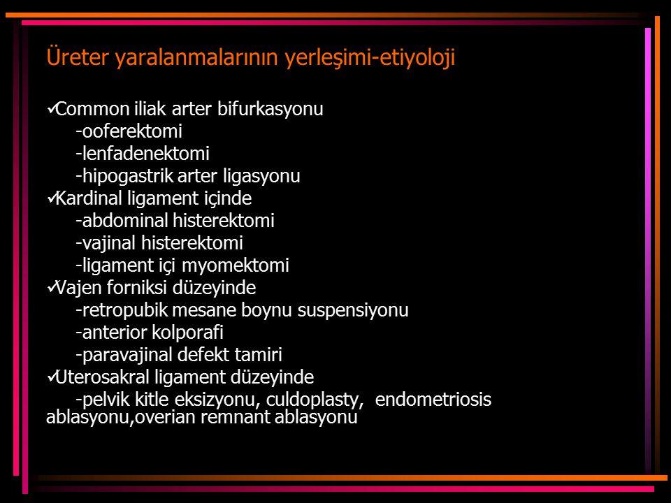 Üreter yaralanmalarının yerleşimi-etiyoloji Common iliak arter bifurkasyonu -ooferektomi -lenfadenektomi -hipogastrik arter ligasyonu Kardinal ligament içinde -abdominal histerektomi -vajinal histerektomi -ligament içi myomektomi Vajen forniksi düzeyinde -retropubik mesane boynu suspensiyonu -anterior kolporafi -paravajinal defekt tamiri Uterosakral ligament düzeyinde -pelvik kitle eksizyonu, culdoplasty, endometriosis ablasyonu,overian remnant ablasyonu