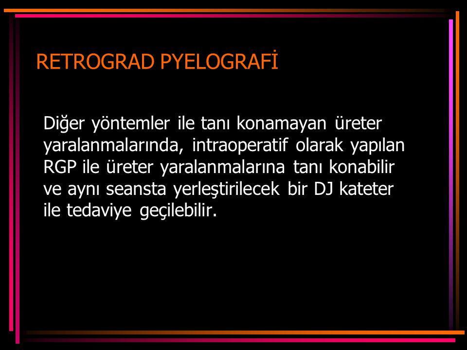 RETROGRAD PYELOGRAFİ Diğer yöntemler ile tanı konamayan üreter yaralanmalarında, intraoperatif olarak yapılan RGP ile üreter yaralanmalarına tanı konabilir ve aynı seansta yerleştirilecek bir DJ kateter ile tedaviye geçilebilir.