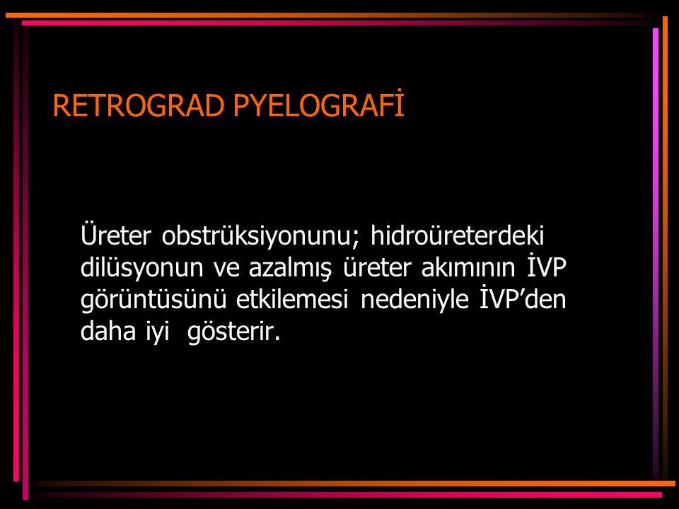 RETROGRAD PYELOGRAFİ Üreter obstrüksiyonunu; hidroüreterdeki dilüsyonun ve azalmış üreter akımının İVP görüntüsünü etkilemesi nedeniyle İVP'den daha iyi gösterir.