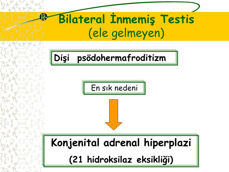 Bilateral İnmemiş Testis (ele gelmeyen) Dişi psödohermafroditizm En sık nedeni Konjenital adrenal hiperplazi (21 hidroksilaz eksikliği)