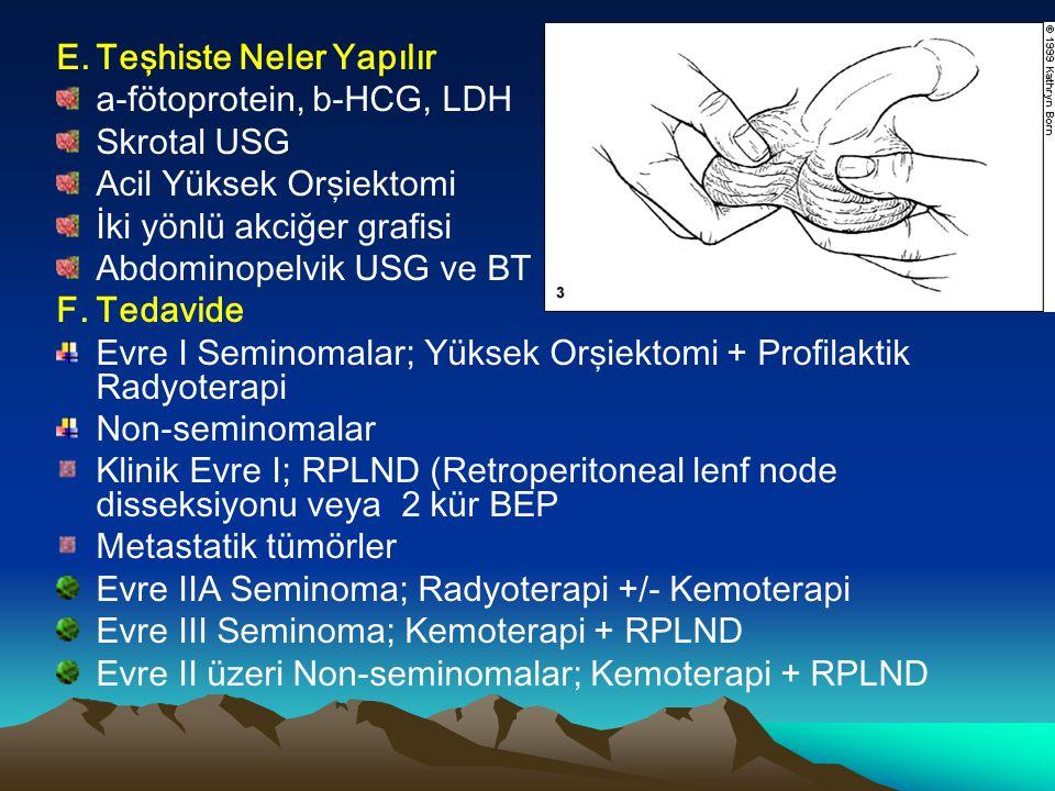 E.Teşhiste Neler Yapılır a-fötoprotein, b-HCG, LDH Skrotal USG Acil Yüksek Orşiektomi İki yönlü akciğer grafisi Abdominopelvik USG ve BT F.Tedavide Ev