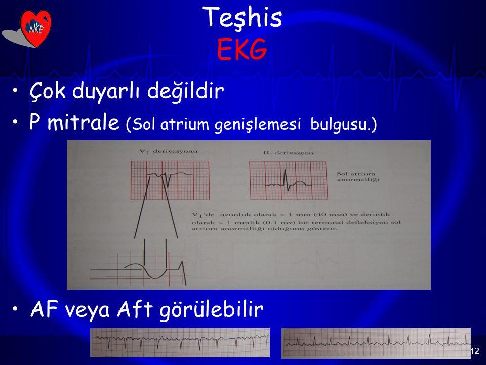 12 Teşhis EKG Çok duyarlı değildir P mitrale (Sol atrium genişlemesi bulgusu.) AF veya Aft görülebilir