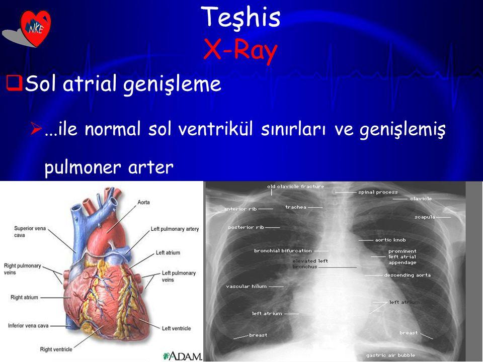 13 Teşhis X-Ray  Sol atrial genişleme ...ile normal sol ventrikül sınırları ve genişlemiş pulmoner arter  Pulmoner konjesyon  Mitral kapak kalsifikasyonu