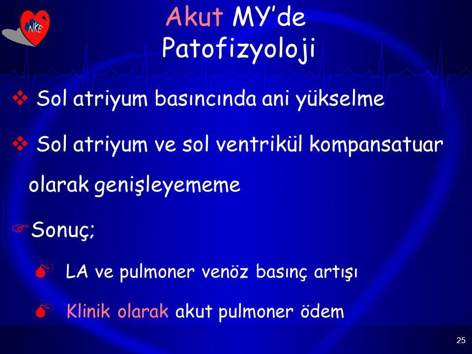 25 Akut MY'de Patofizyoloji  Sol atriyum basıncında ani yükselme  Sol atriyum ve sol ventrikül kompansatuar olarak genişleyememe  Sonuç;  LA ve pulmoner venöz basınç artışı  Klinik olarak akut pulmoner ödem
