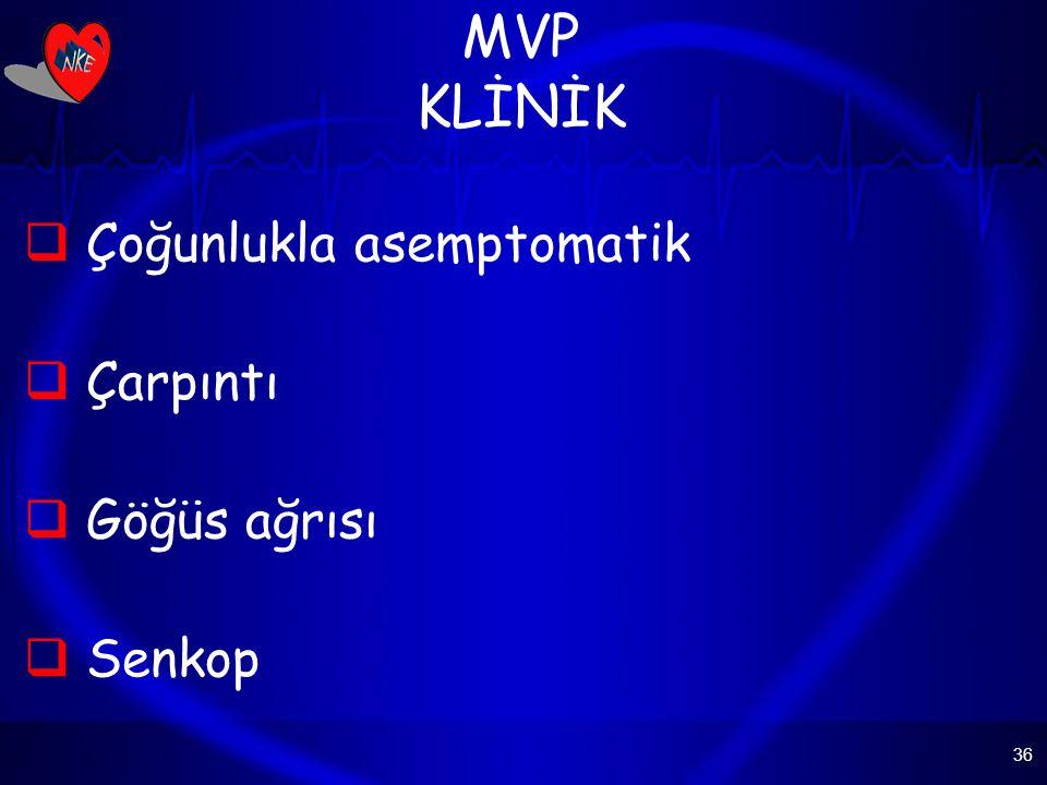 36 MVP KLİNİK  Çoğunlukla asemptomatik  Çarpıntı  Göğüs ağrısı  Senkop
