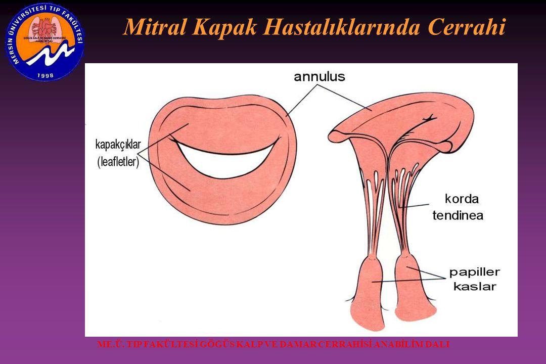 Mitral Kapak Hastalıklarında Cerrahi