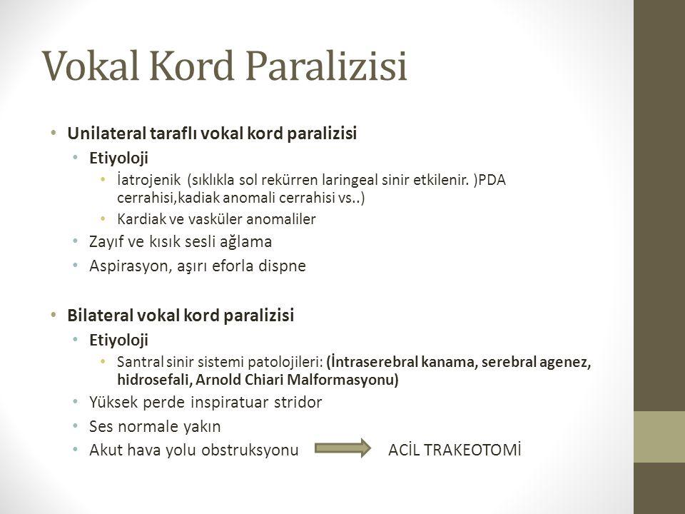 Vokal Kord Paralizisi Unilateral taraflı vokal kord paralizisi Etiyoloji İatrojenik (sıklıkla sol rekürren laringeal sinir etkilenir. )PDA cerrahisi,k