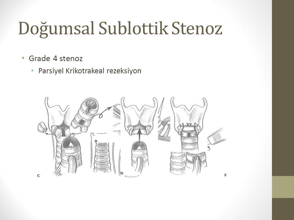 Doğumsal Sublottik Stenoz Grade 4 stenoz Parsiyel Krikotrakeal rezeksiyon