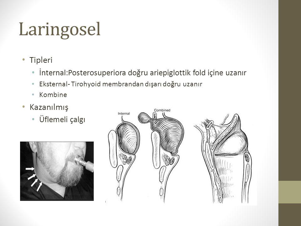 Laringosel Tipleri İnternal:Posterosuperiora doğru ariepiglottik fold içine uzanır Eksternal- Tirohyoid membrandan dışarı doğru uzanır Kombine Kazanıl