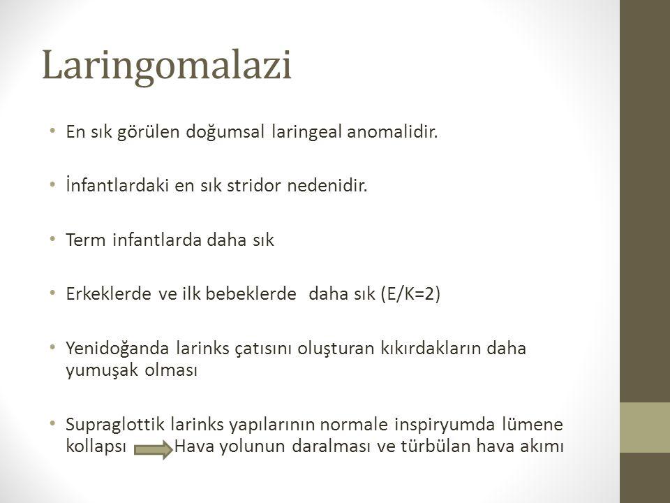 Laringomalazi En sık görülen doğumsal laringeal anomalidir. İnfantlardaki en sık stridor nedenidir. Term infantlarda daha sık Erkeklerde ve ilk bebekl