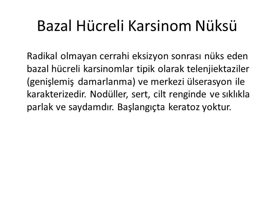 Bazal Hücreli Karsinom Nüksü Radikal olmayan cerrahi eksizyon sonrası nüks eden bazal hücreli karsinomlar tipik olarak telenjiektaziler (genişlemiş da