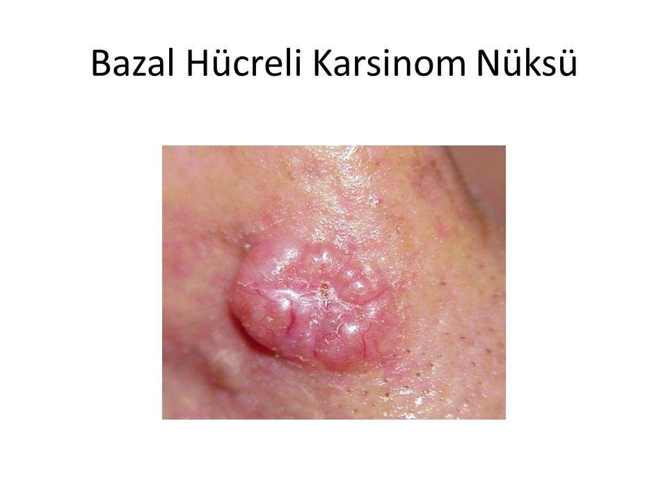 Bazal Hücreli Karsinom Nüksü