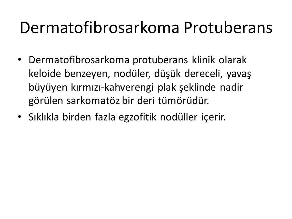 Dermatofibrosarkoma Protuberans Dermatofibrosarkoma protuberans klinik olarak keloide benzeyen, nodüler, düşük dereceli, yavaş büyüyen kırmızı-kahvere