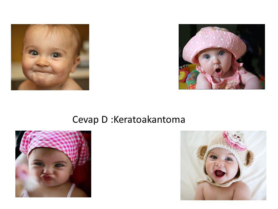KERATOAKANTOMA Keratoakantomalar genellikle hızla büyüyen skuamöz hücreli karsinom varyantı olarak kabul edilirler.