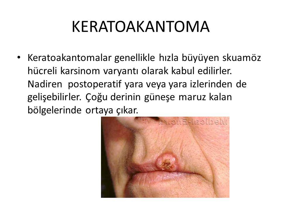 KERATOAKANTOMA Keratoakantomalar genellikle hızla büyüyen skuamöz hücreli karsinom varyantı olarak kabul edilirler. Nadiren postoperatif yara veya yar