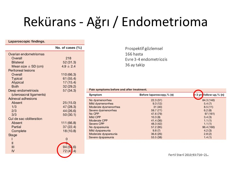 Rekürans - Ağrı / Endometrioma Fertil Steril 2010;93:716–21.