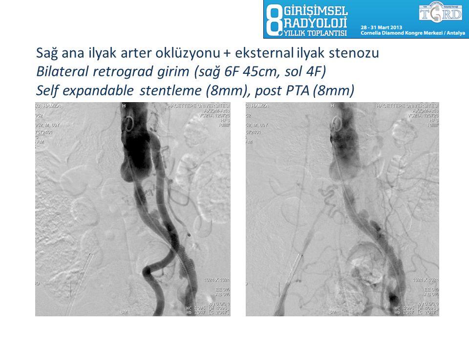 Sağ ana ilyak arter oklüzyonu + eksternal ilyak stenozu Bilateral retrograd girim (sağ 6F 45cm, sol 4F) Self expandable stentleme (8mm), post PTA (8mm