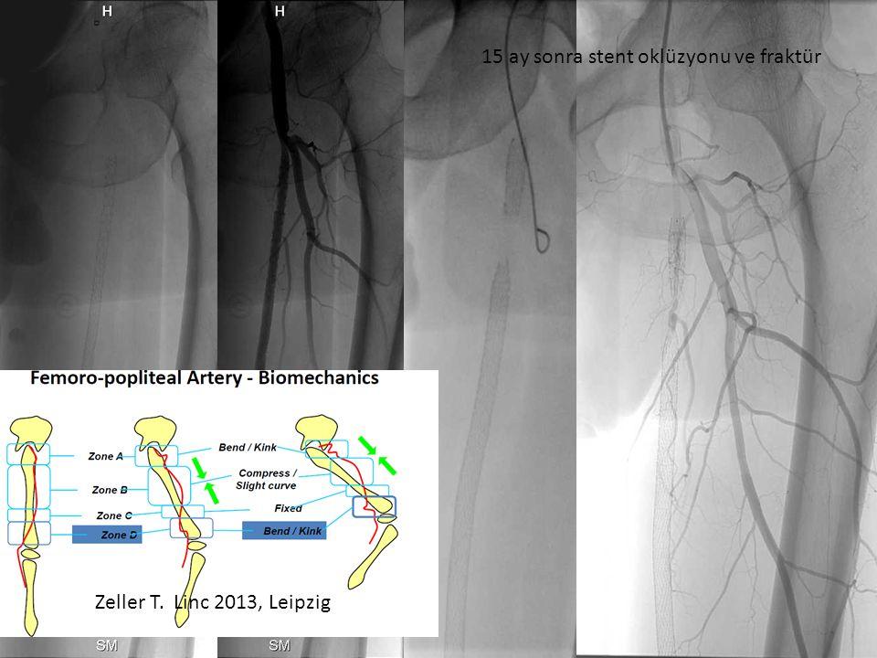 Zeller T. Linc 2013, Leipzig 15 ay sonra stent oklüzyonu ve fraktür
