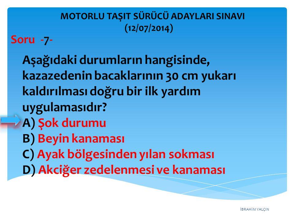 İBRAHİM YALÇIN MOTORLU TAŞIT SÜRÜCÜ ADAYLARI SINAVI (12/07/2014) Soru - 48- Donmayı önlemek için radyatöre ne konulur.