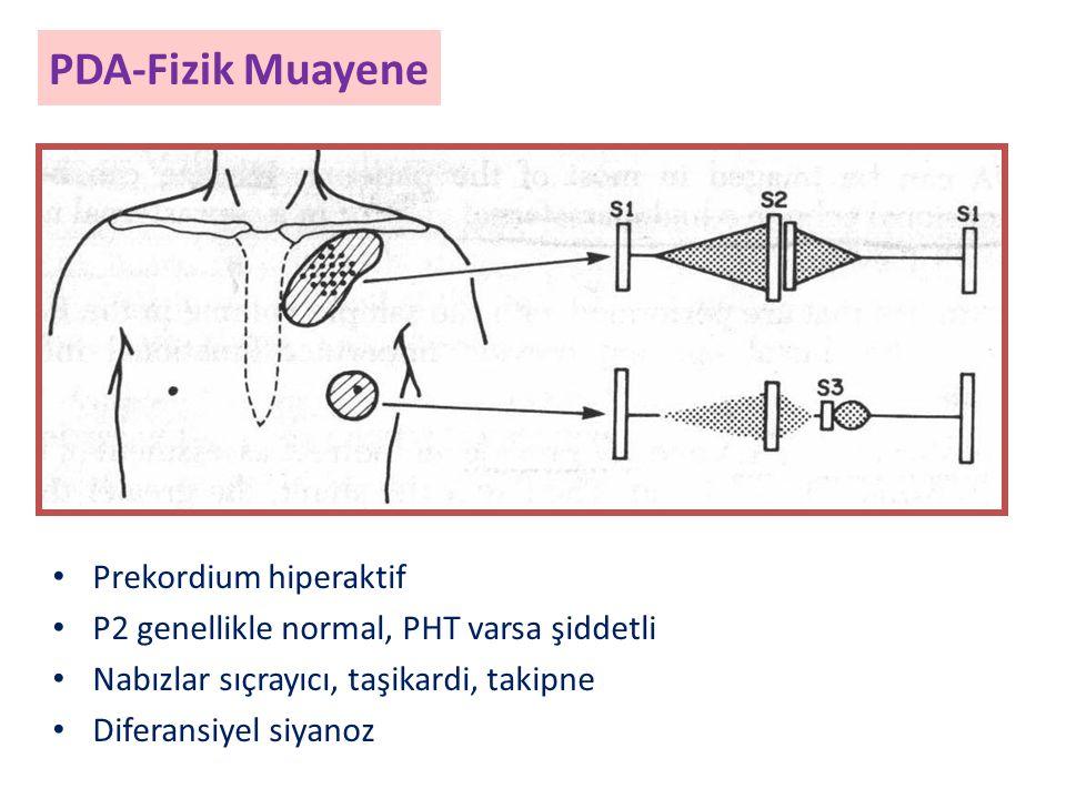 PDA-Fizik Muayene Prekordium hiperaktif P2 genellikle normal, PHT varsa şiddetli Nabızlar sıçrayıcı, taşikardi, takipne Diferansiyel siyanoz