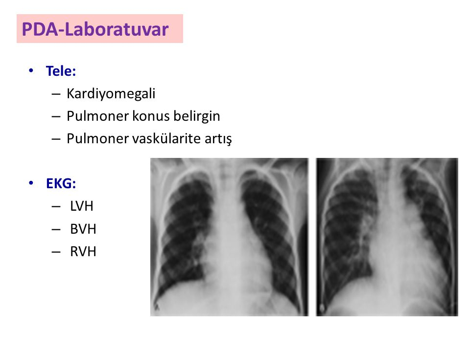 PDA-Laboratuvar Tele: – Kardiyomegali – Pulmoner konus belirgin – Pulmoner vaskülarite artış EKG: – LVH – BVH – RVH