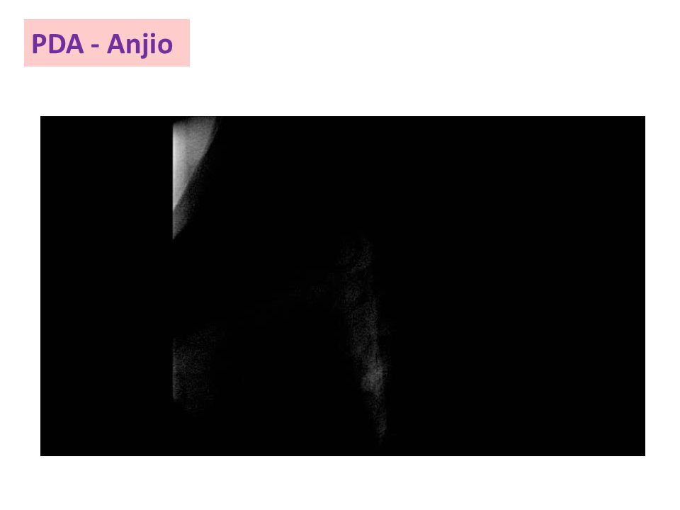 PDA - Anjio