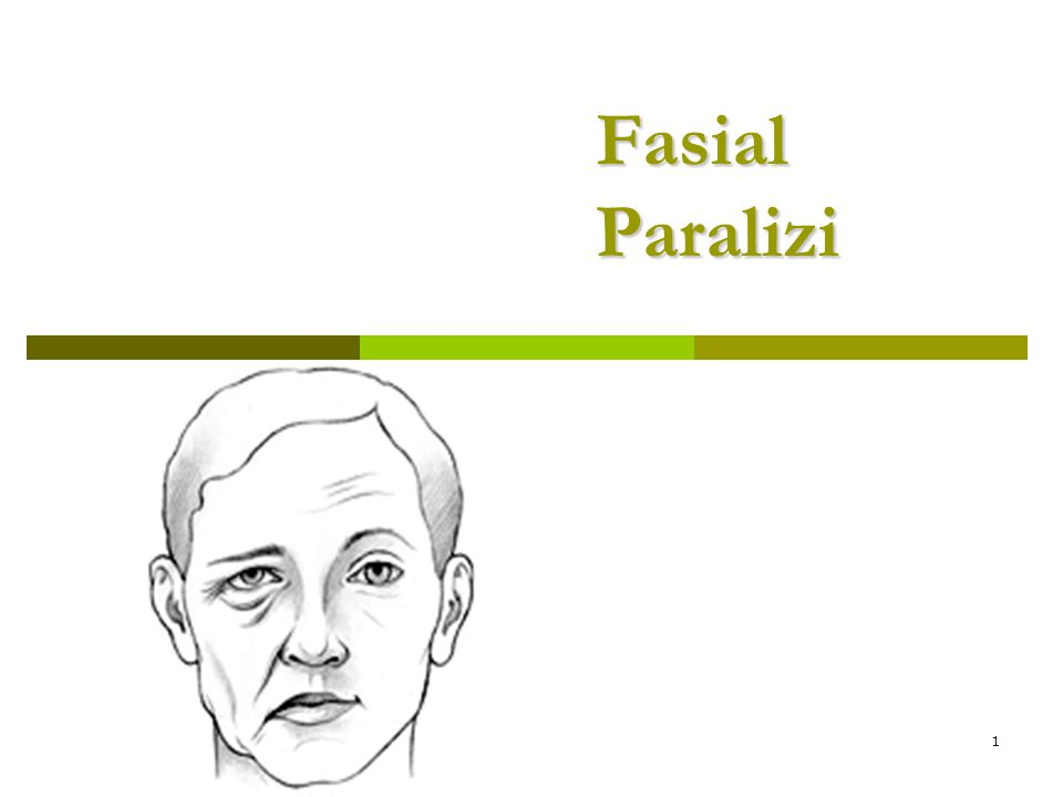 1 Fasial Paralizi