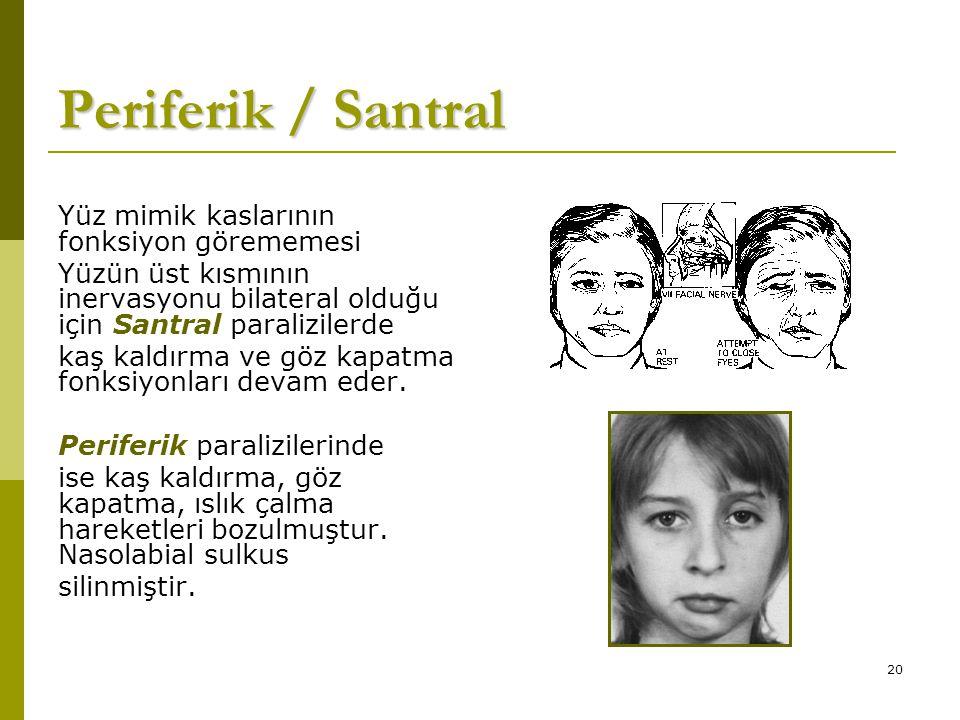 20 Periferik / Santral Yüz mimik kaslarının fonksiyon görememesi Yüzün üst kısmının inervasyonu bilateral olduğu için Santral paralizilerde kaş kaldırma ve göz kapatma fonksiyonları devam eder.