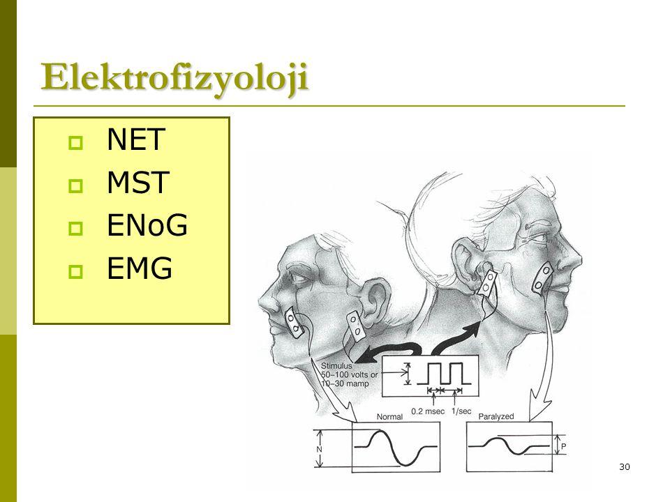 30 Elektrofizyoloji  NET  MST  ENoG  EMG