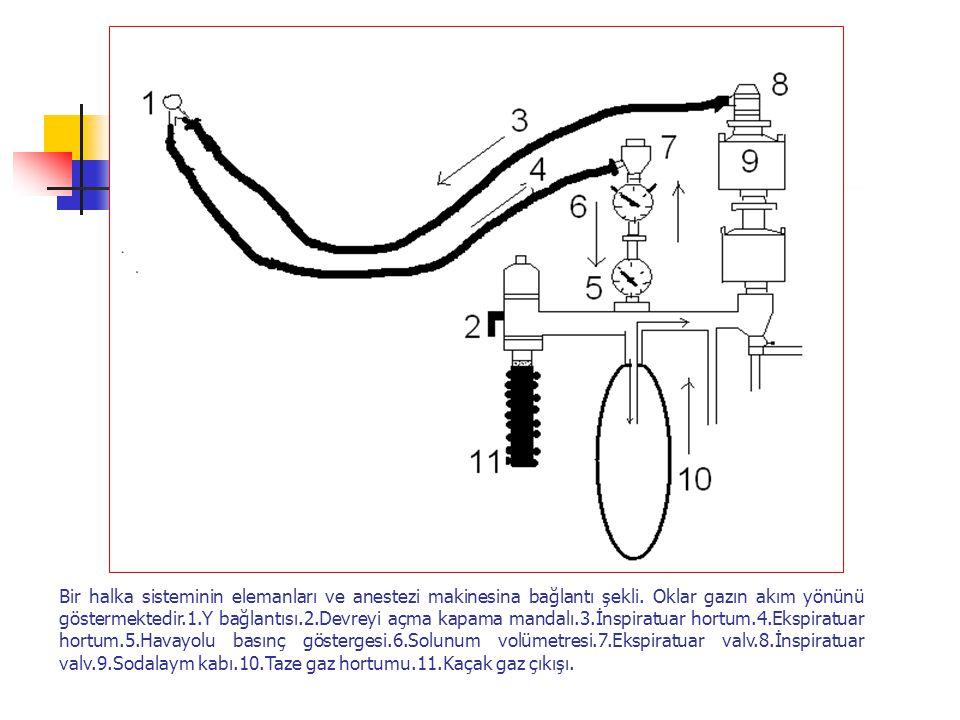 Bir halka sisteminin elemanları ve anestezi makinesina bağlantı şekli. Oklar gazın akım yönünü göstermektedir.1.Y bağlantısı.2.Devreyi açma kapama man