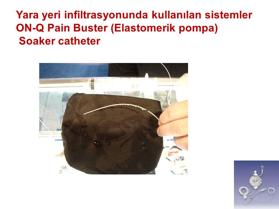 Yara yeri infiltrasyonunda kullanılan sistemler ON-Q Pain Buster (Elastomerik pompa) Soaker catheter