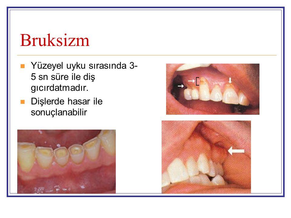 Bruksizm Yüzeyel uyku sırasında 3- 5 sn süre ile diş gıcırdatmadır. Dişlerde hasar ile sonuçlanabilir