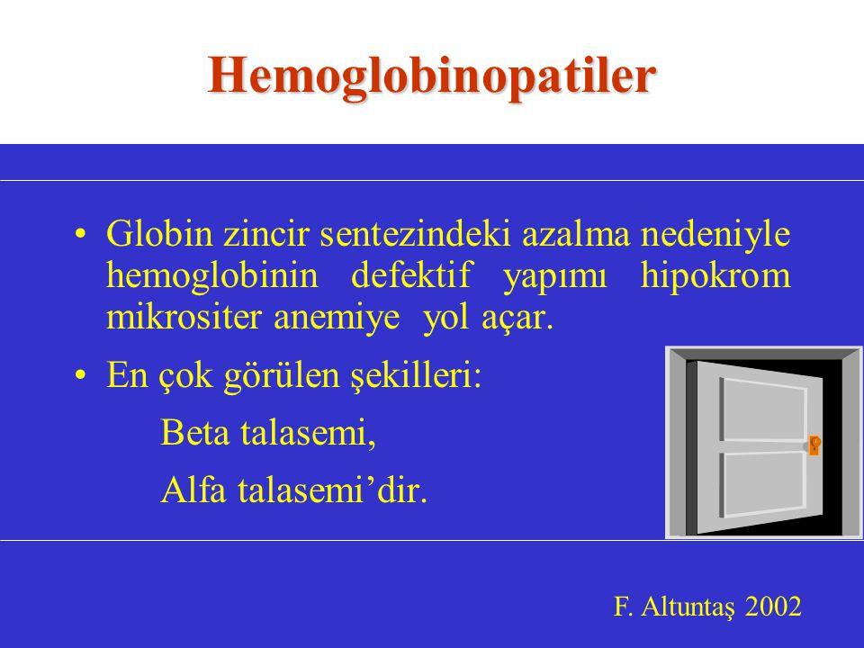 Globin zincir sentezindeki azalma nedeniyle hemoglobinin defektif yapımı hipokrom mikrositer anemiye yol açar.