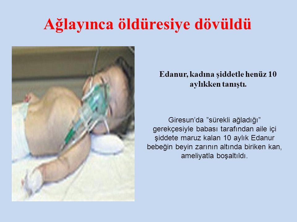 """Ağlayınca öldüresiye dövüldü Giresun'da """"sürekli ağladığı"""" gerekçesiyle babası tarafından aile içi şiddete maruz kalan 10 aylık Edanur bebeğin beyin z"""